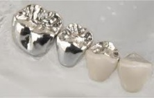 Metal fixed dental prostheses