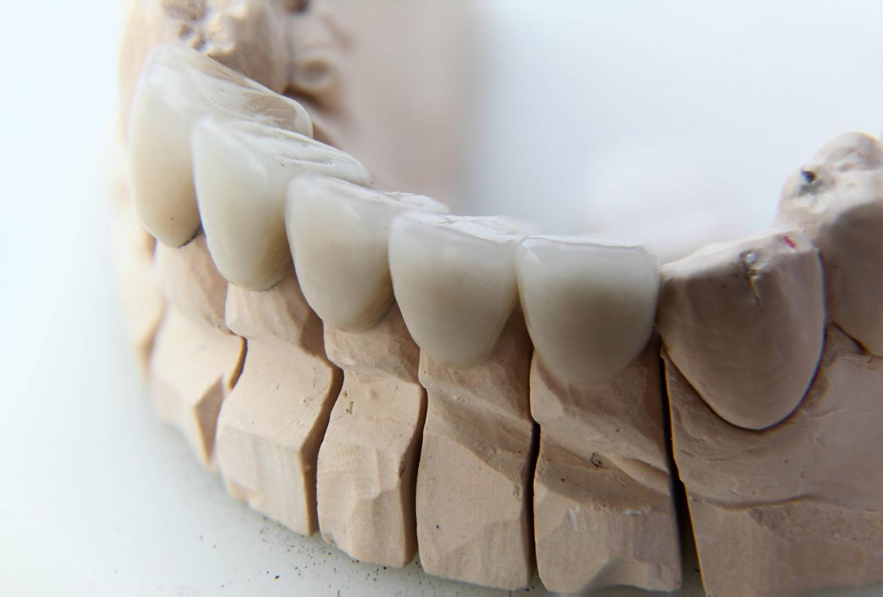 High-tech in dental technology • News • DentalTech - Dental ...